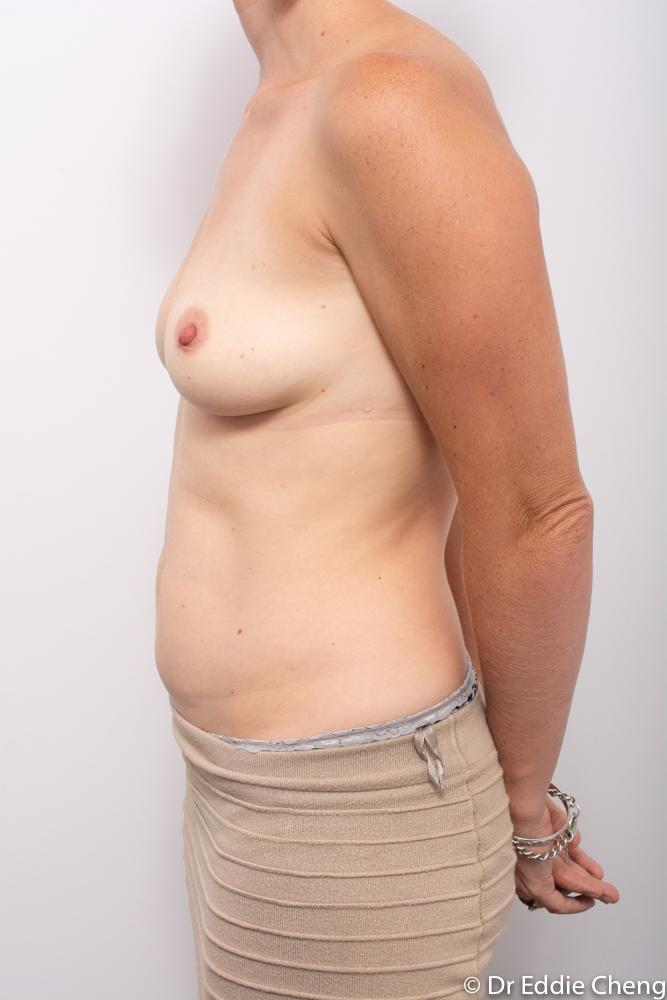 pre breast augmentation dr eddie cheng brisbane (5 of 5)