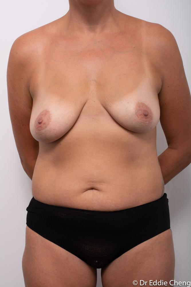 pre breast lift and augmentation dr eddie cheng brisbane (1 of 3)