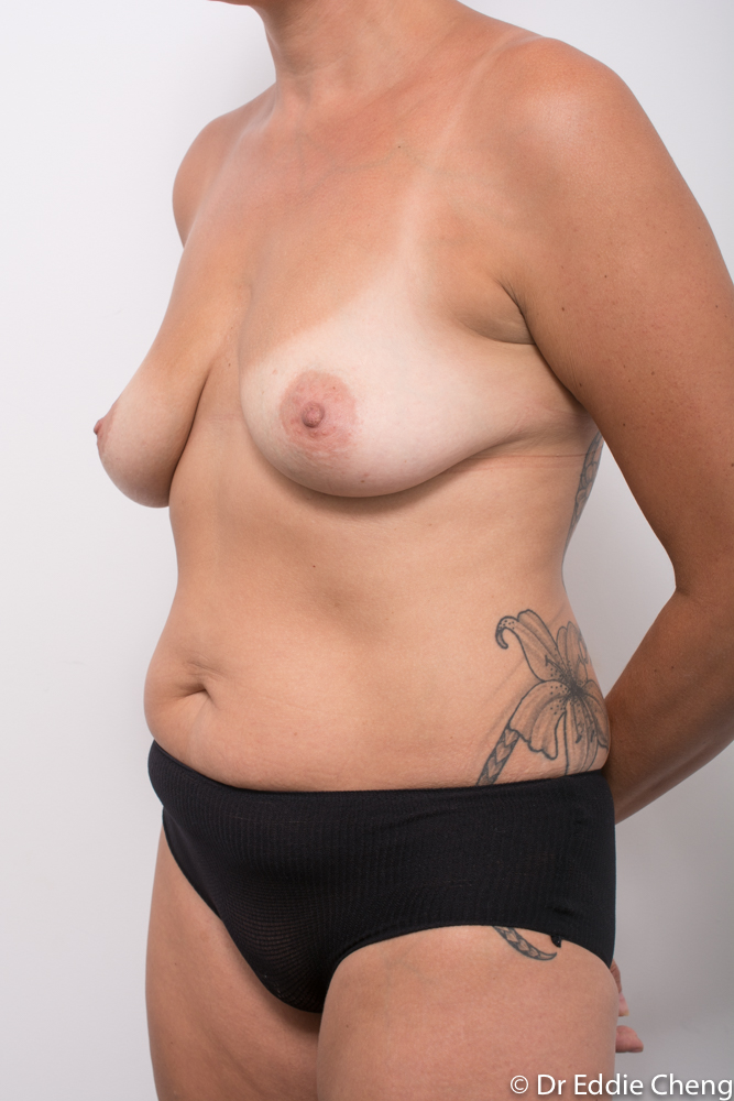 pre breast lift and augmentation dr eddie cheng brisbane (2 of 3)