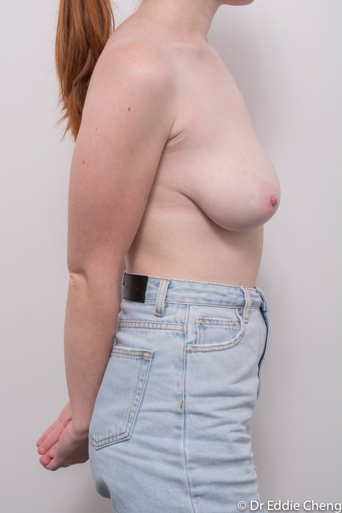 pre breast reduction dr eddie cheng brisbane (1 of 3)