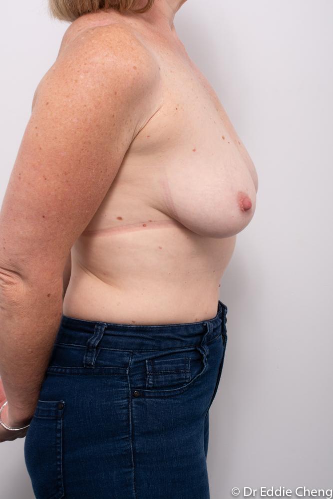 pre breast reduction dr eddie cheng brisbane (1 of 5)
