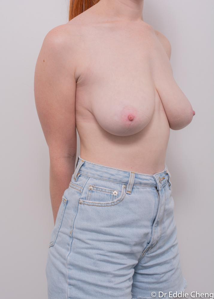 pre breast reduction dr eddie cheng brisbane (2 of 3)