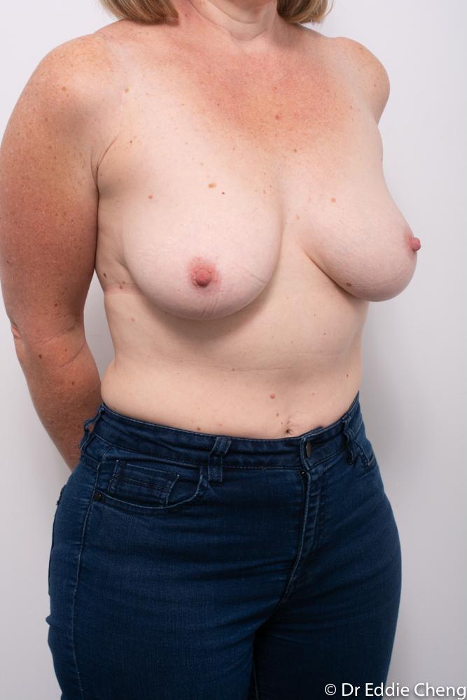 pre breast reduction dr eddie cheng brisbane (2 of 5)
