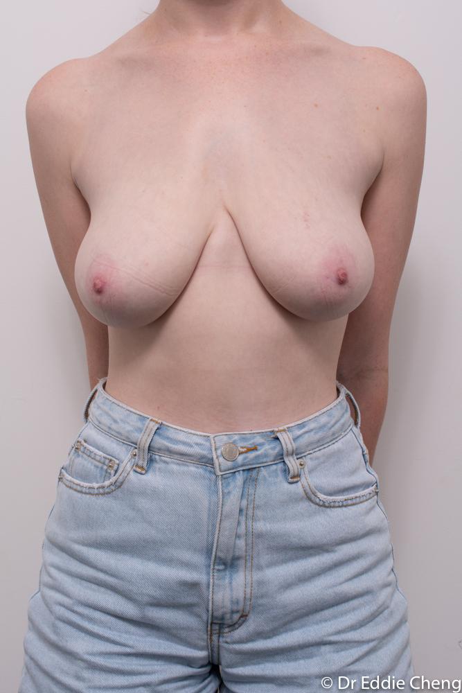 pre breast reduction dr eddie cheng brisbane (3 of 3)