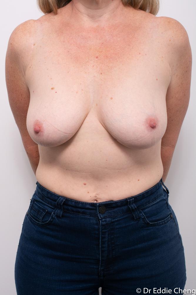 pre breast reduction dr eddie cheng brisbane (3 of 5)
