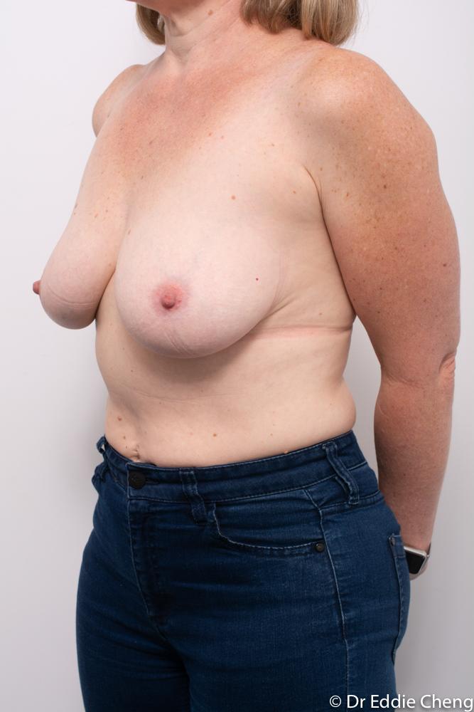 pre breast reduction dr eddie cheng brisbane (4 of 5)