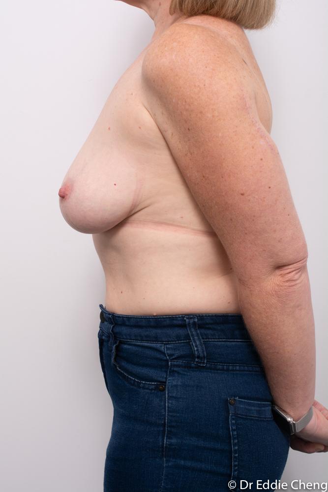 pre breast reduction dr eddie cheng brisbane (5 of 5)