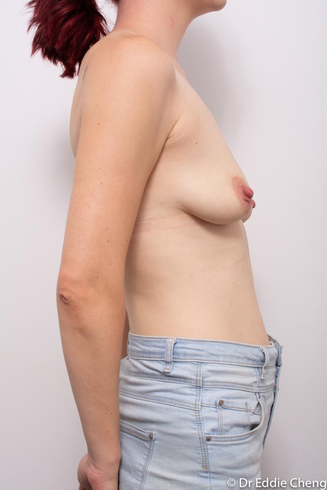 pre op augmentation mastopexy dr eddie cheng brisband (1 of 5)