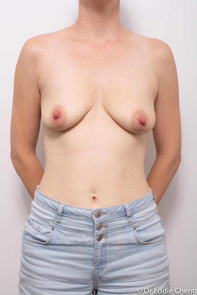 pre op augmentation mastopexy dr eddie cheng brisband (3 of 5)