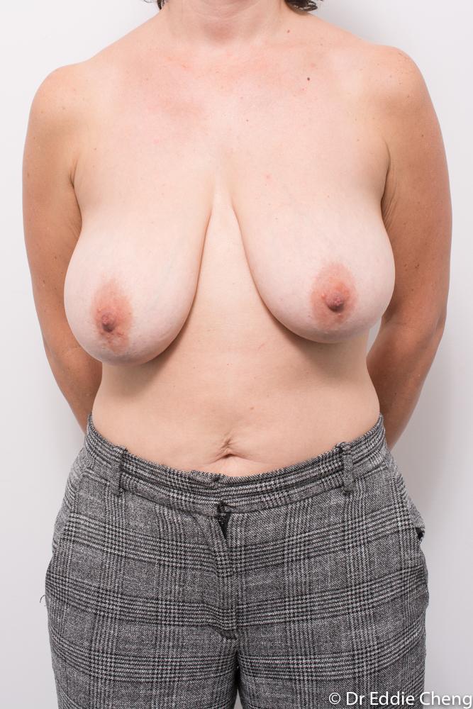 pre op breast reduction dr eddie cheng brisbane (1 of 3)