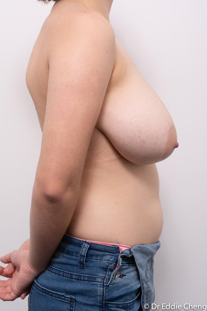 pre op breast reduction dr eddie cheng brisbane (1 of 5)