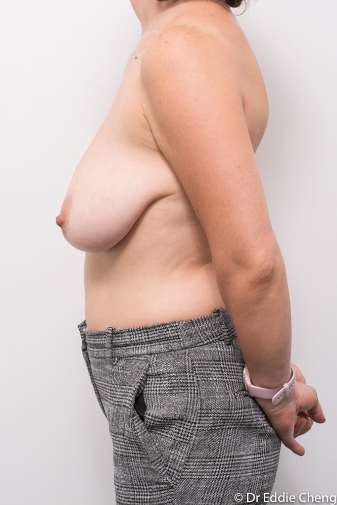 pre op breast reduction dr eddie cheng brisbane (3 of 3)