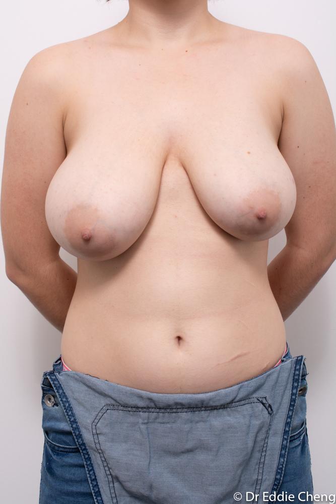 pre op breast reduction dr eddie cheng brisbane (3 of 5)