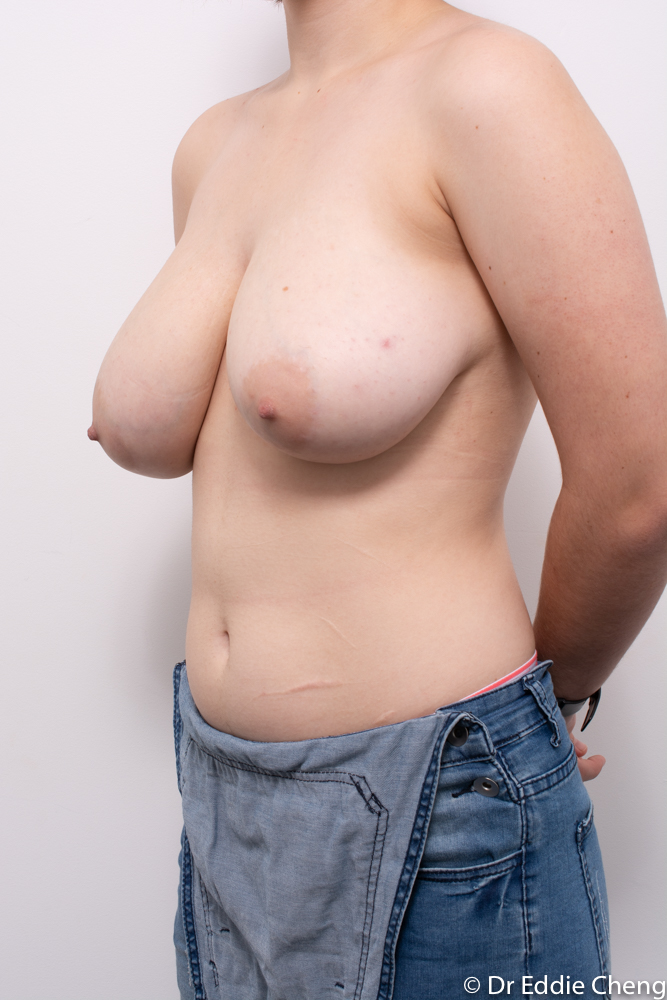 pre op breast reduction dr eddie cheng brisbane (4 of 5)