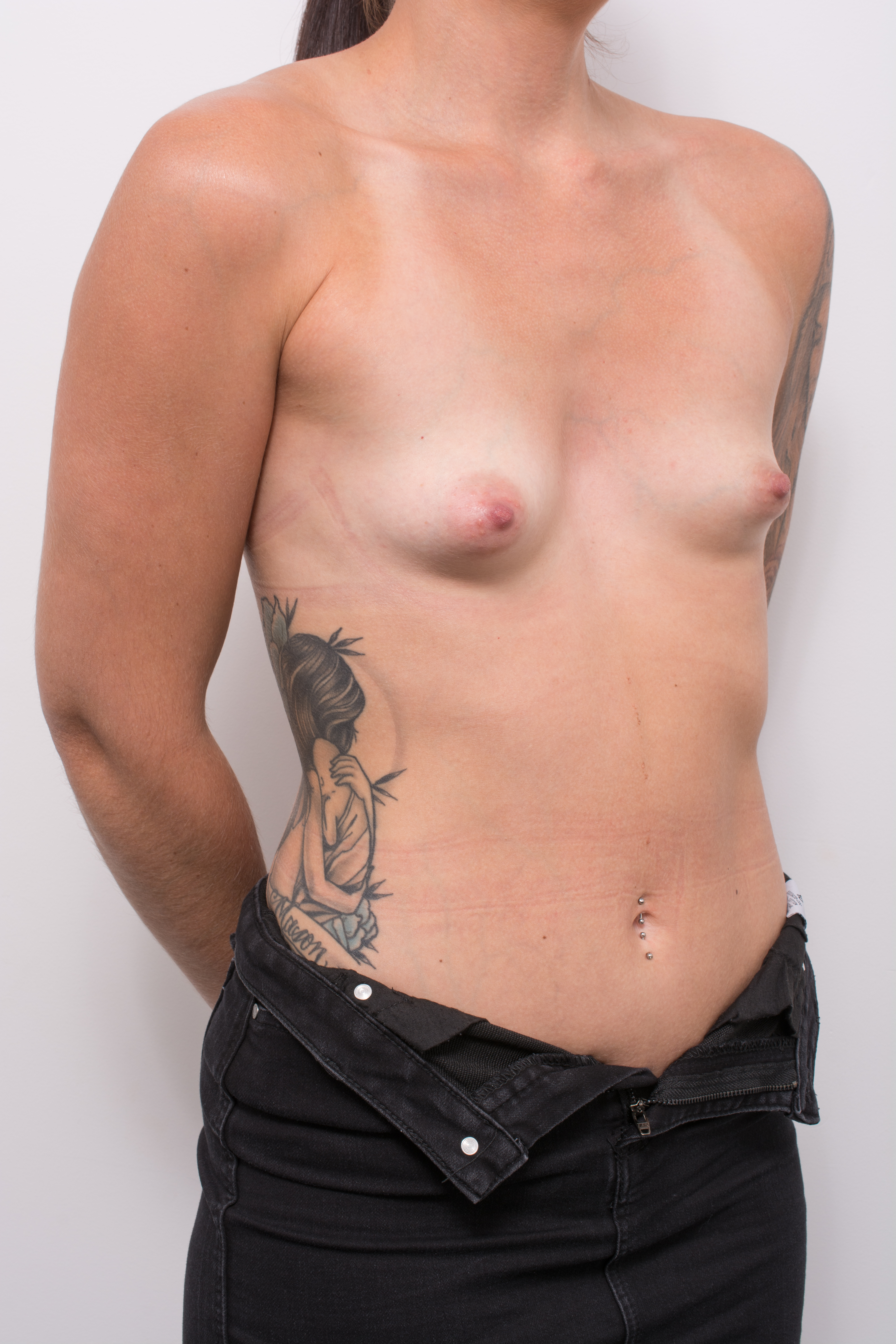 pre op correction of tuberous breasts (2 of 5)