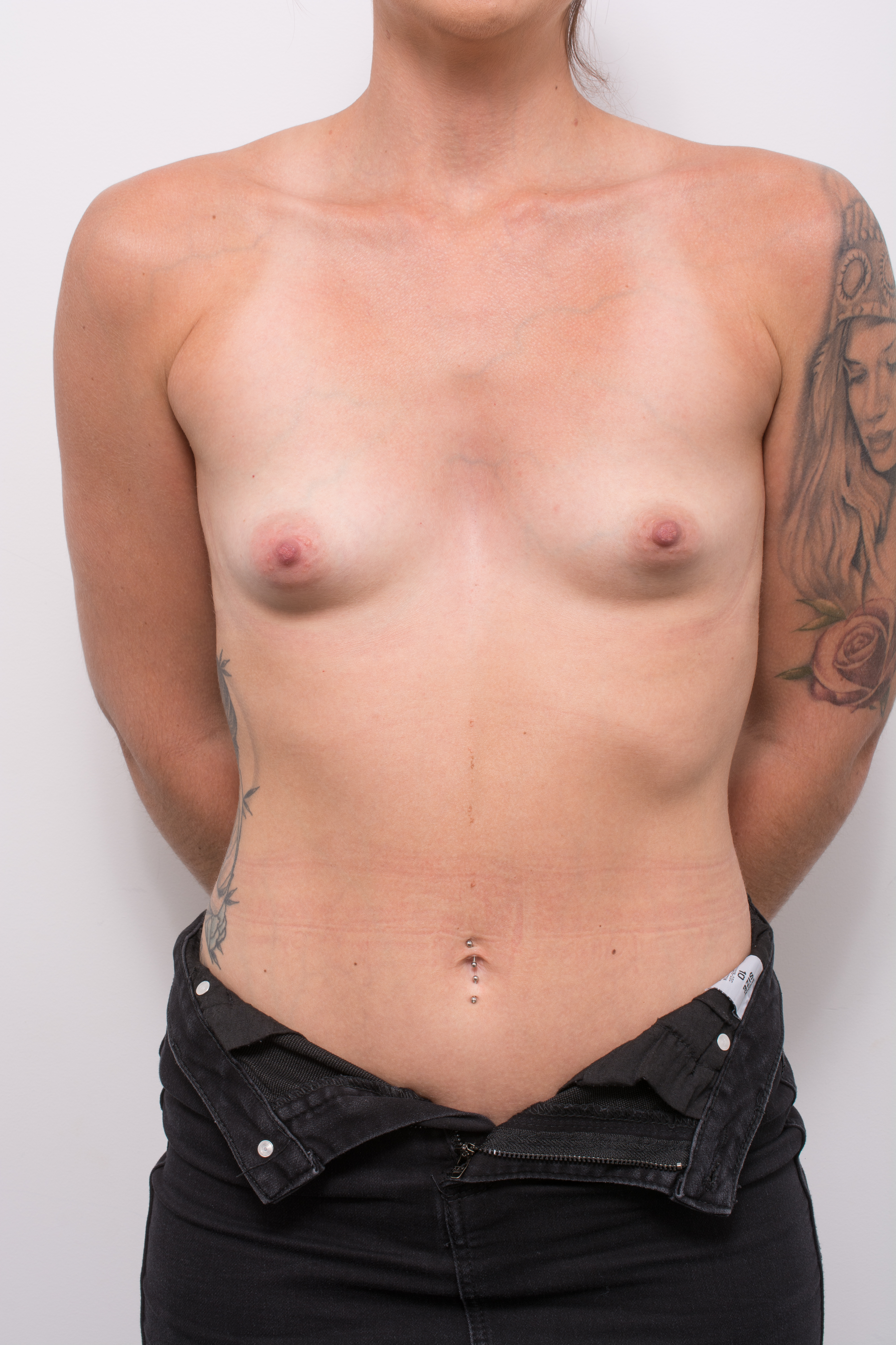 pre op correction of tuberous breasts (3 of 5)