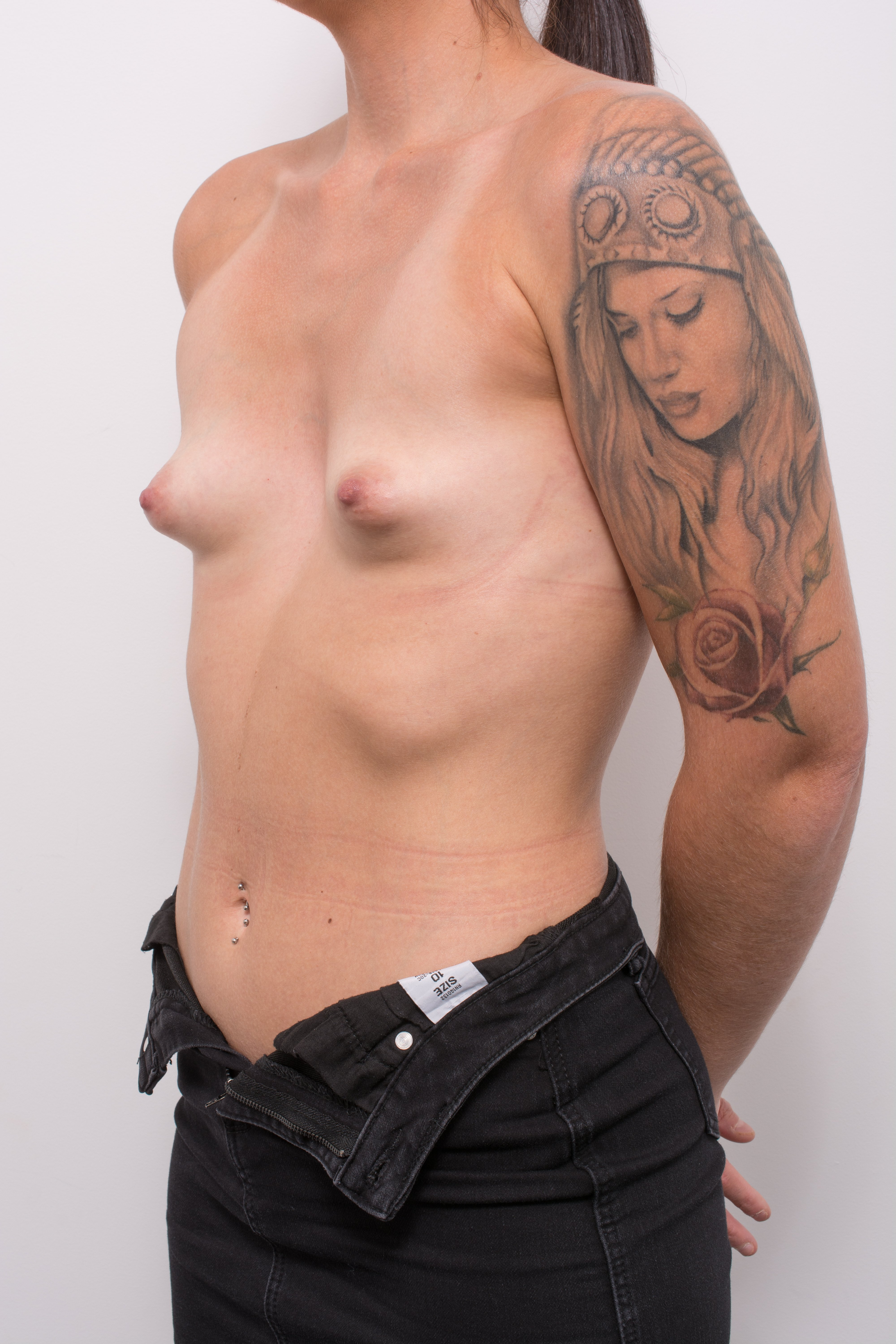 pre op correction of tuberous breasts (4 of 5)