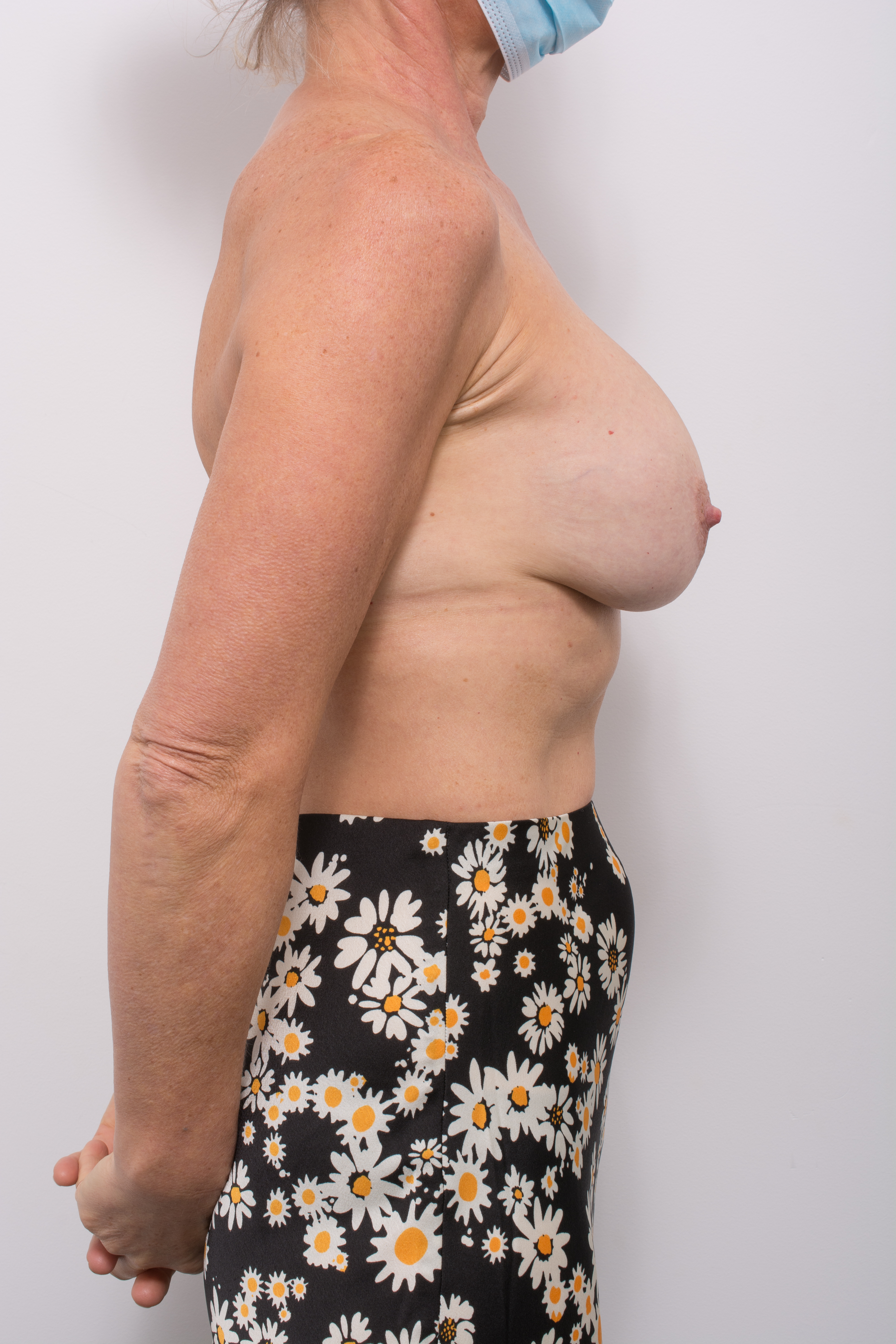 pre op removal of breast implants and mastopexy (1 of 5) (1)
