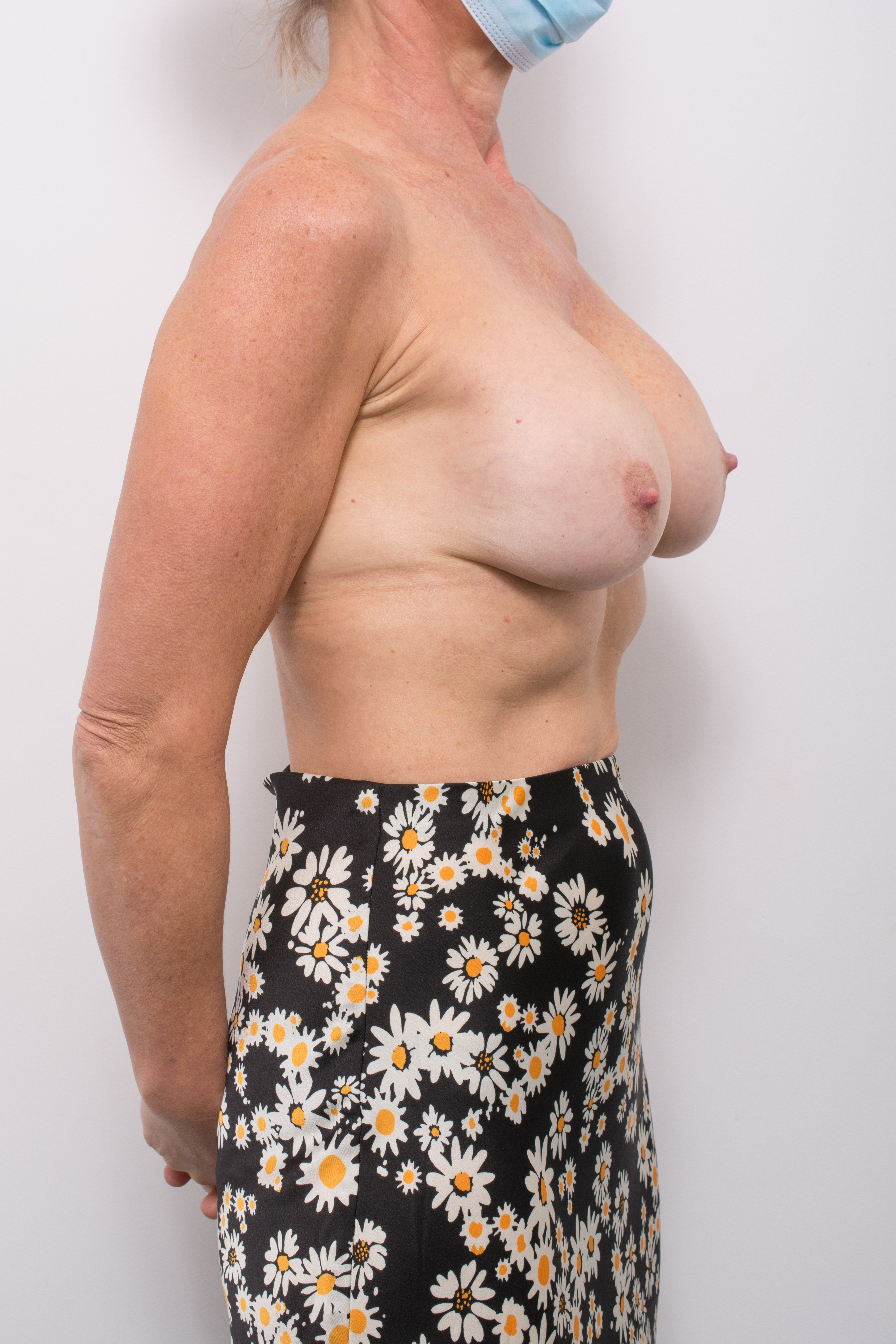 pre op removal of breast implants and mastopexy (2 of 5) (1)