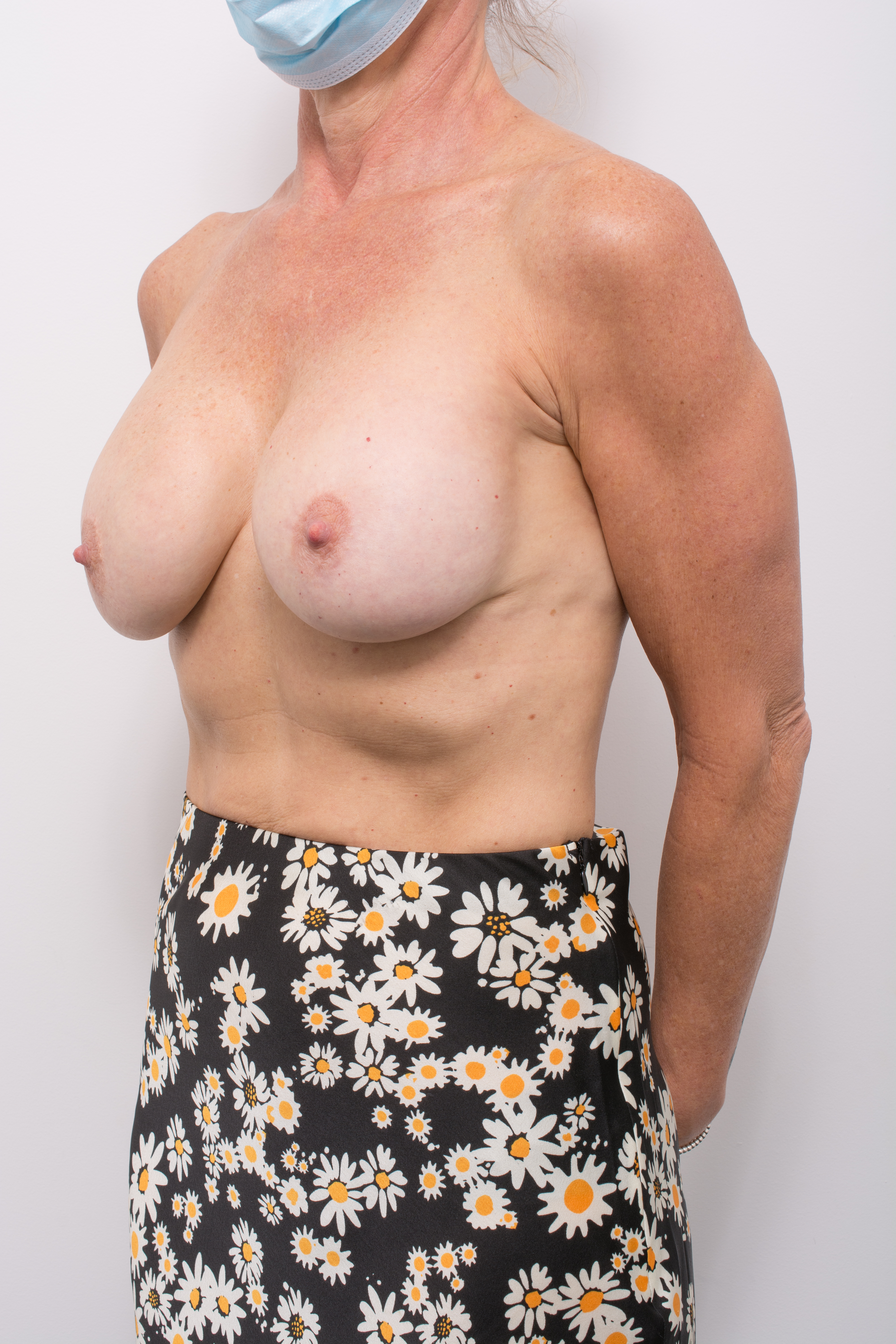 pre op removal of breast implants and mastopexy (4 of 5)
