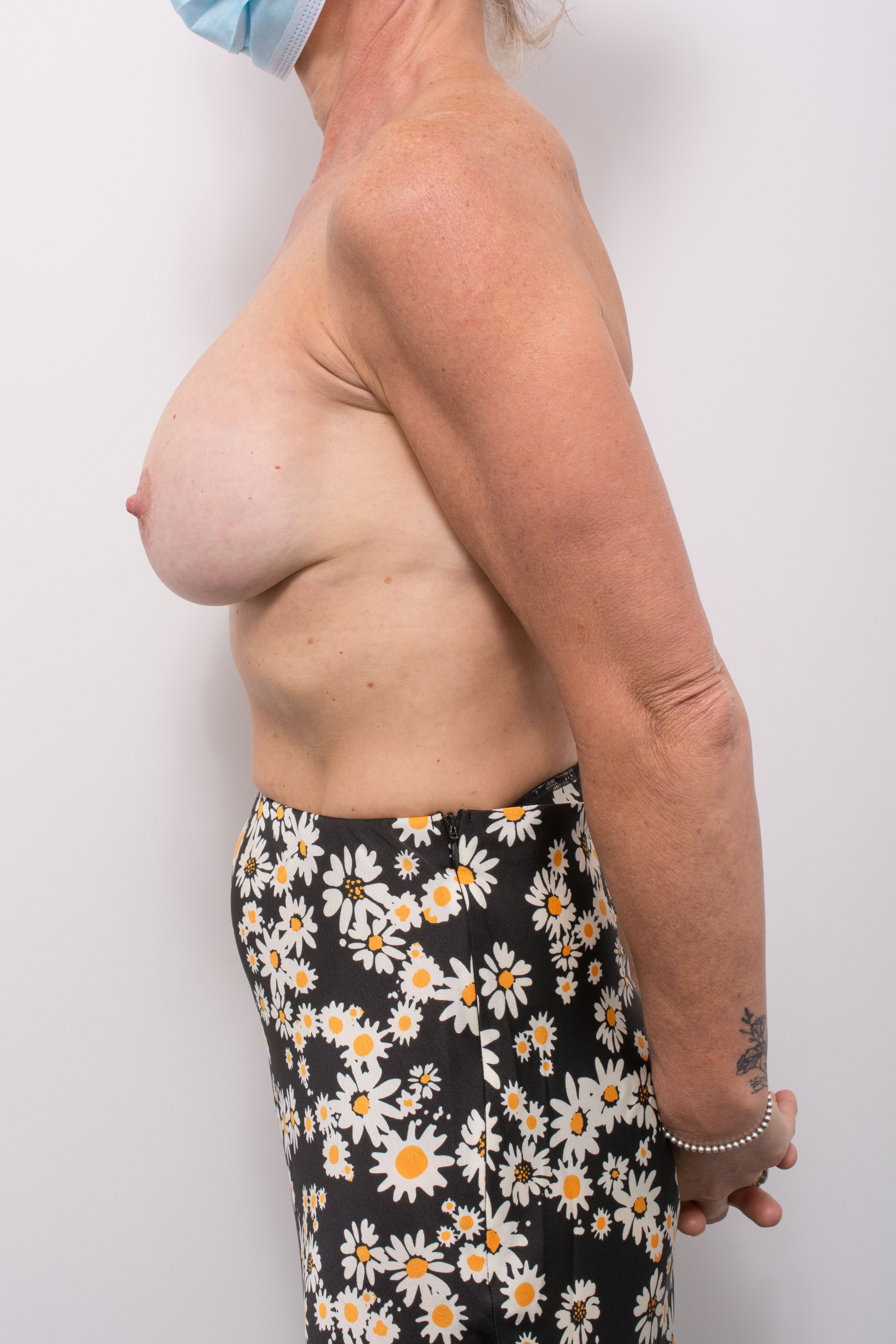 pre op removal of breast implants and mastopexy (5 of 5)
