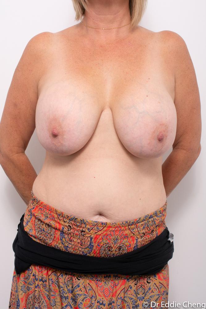 pre op removal of breast implants dr eddie cheng brisbane (3 of 5)