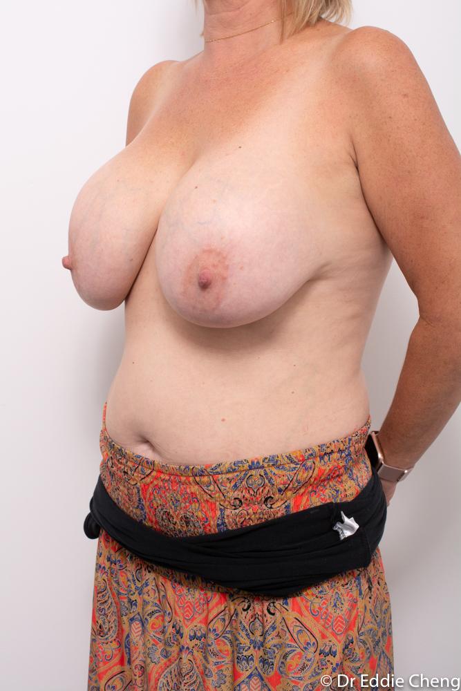 pre op removal of breast implants dr eddie cheng brisbane (4 of 5)