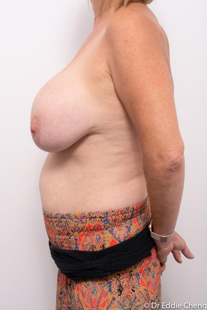 pre op removal of breast implants dr eddie cheng brisbane (5 of 5)