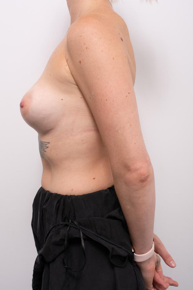 pre op revision of implants dr eddie cheng brisbane (5 of 5)