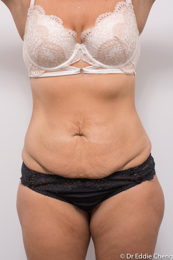 pre op tummy tuck dr eddie cheng brisbane (3 of 5)