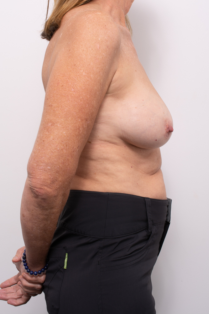 pre, removal of breast implants, capsulectomy, breast lift (1 of 5)