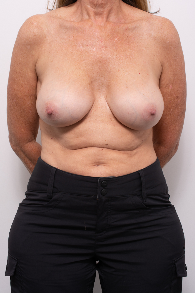 pre, removal of breast implants, capsulectomy, breast lift (3 of 5)