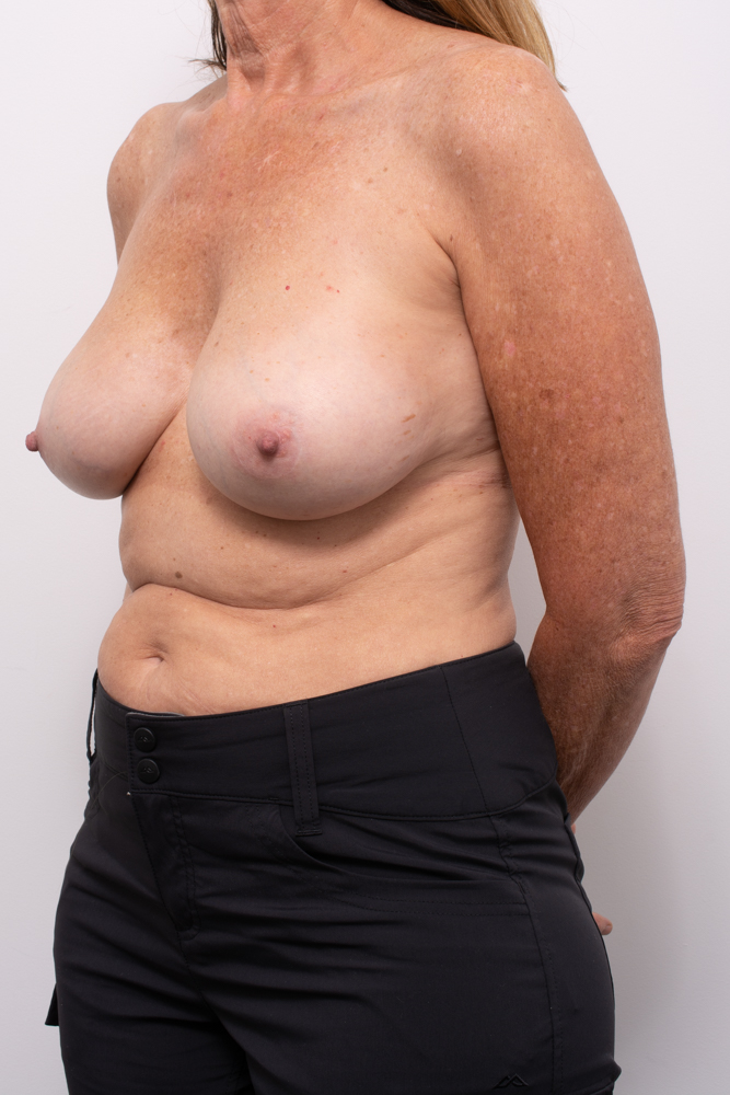 pre, removal of breast implants, capsulectomy, breast lift (4 of 5)