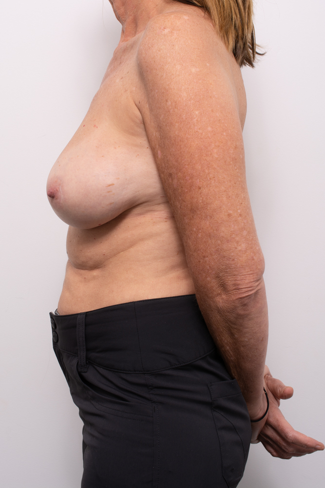 pre, removal of breast implants, capsulectomy, breast lift (5 of 5)