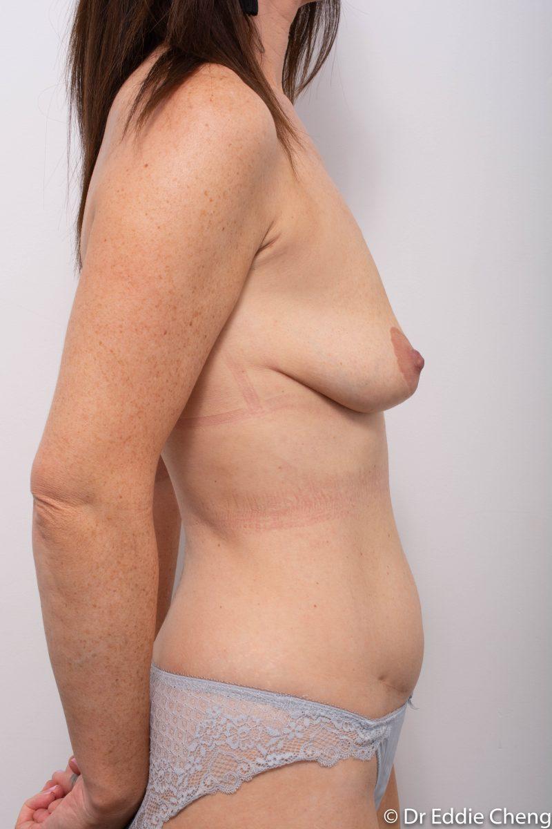 pre-op-mastopexy-breast-lift-1-800x1200-1