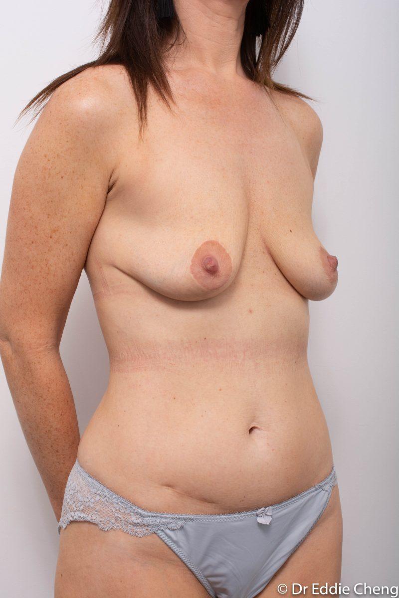 pre-op-mastopexy-breast-lift-2-800x1200-1