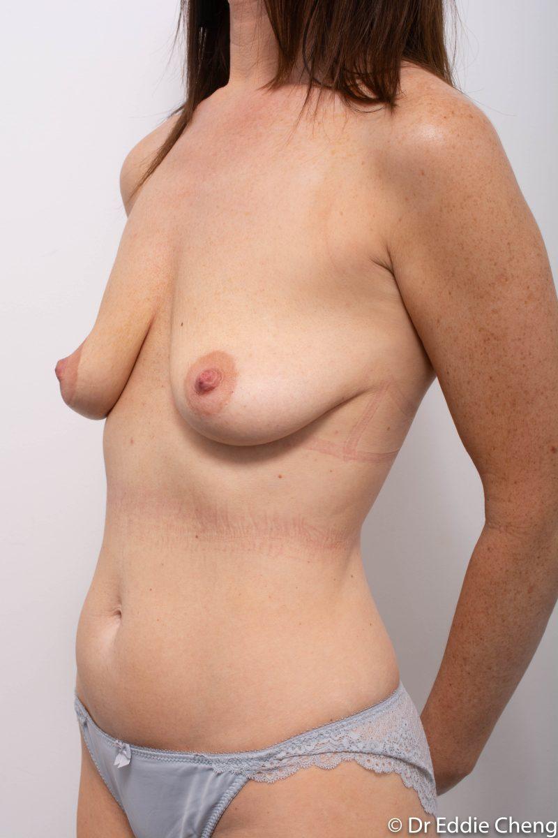 pre-op-mastopexy-breast-lift-4-800x1200-1