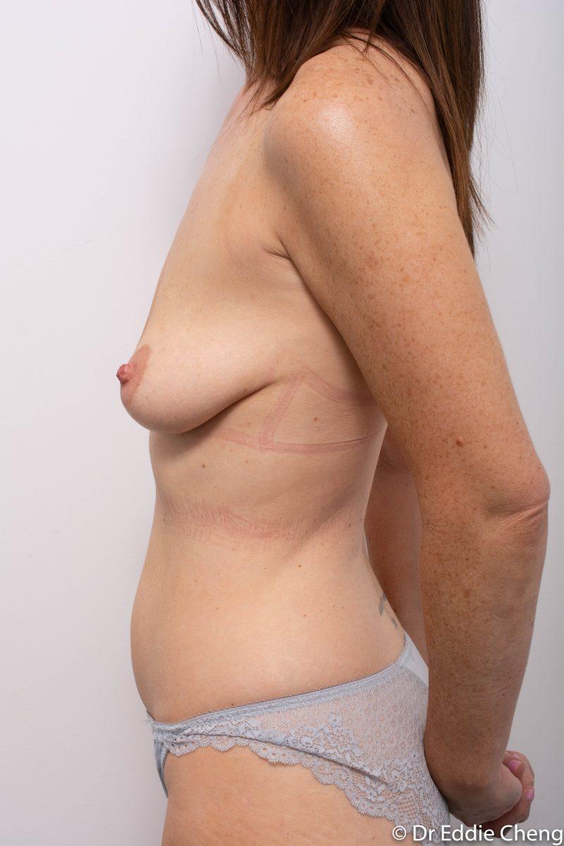 pre-op-mastopexy-breast-lift-5-800x1200-1