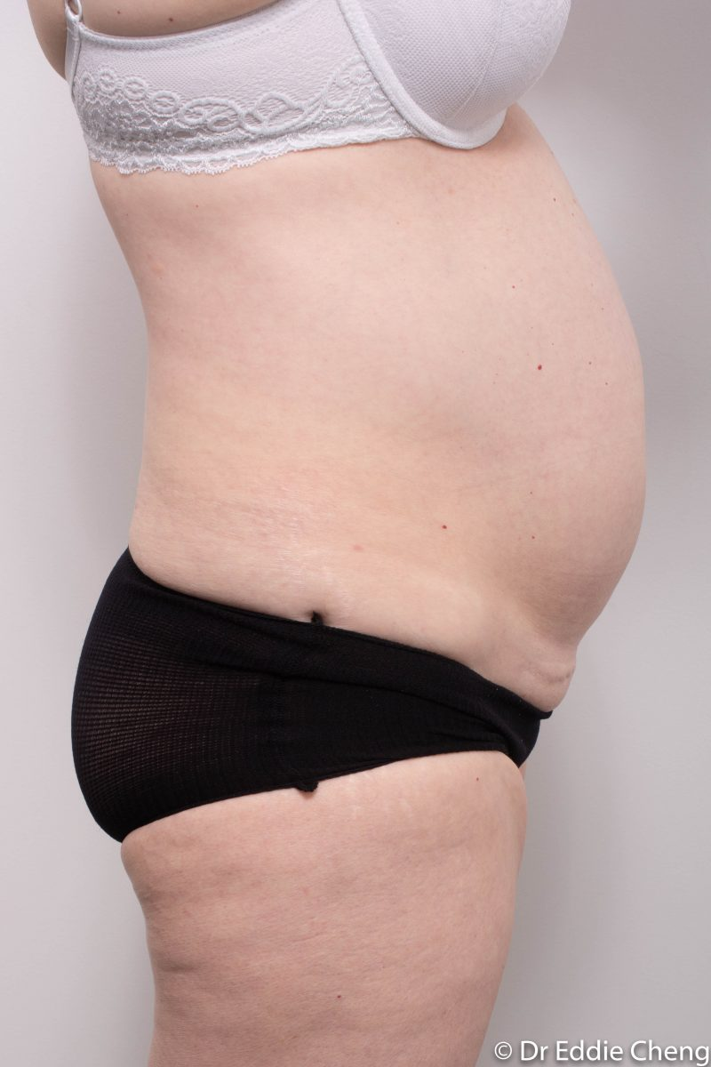 pre-op-tummy-tuck-1-800x1200