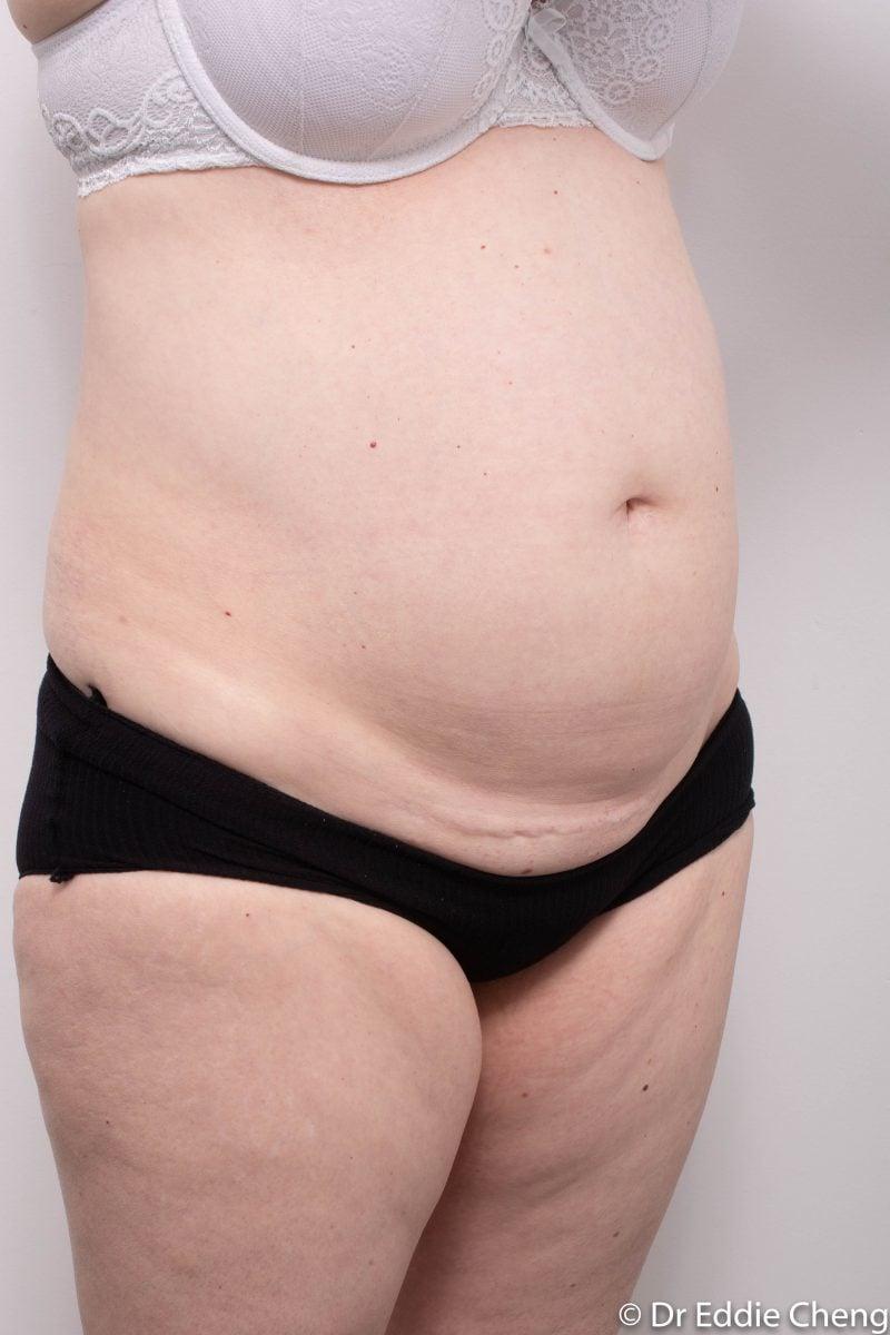 pre-op-tummy-tuck-2-800x1200