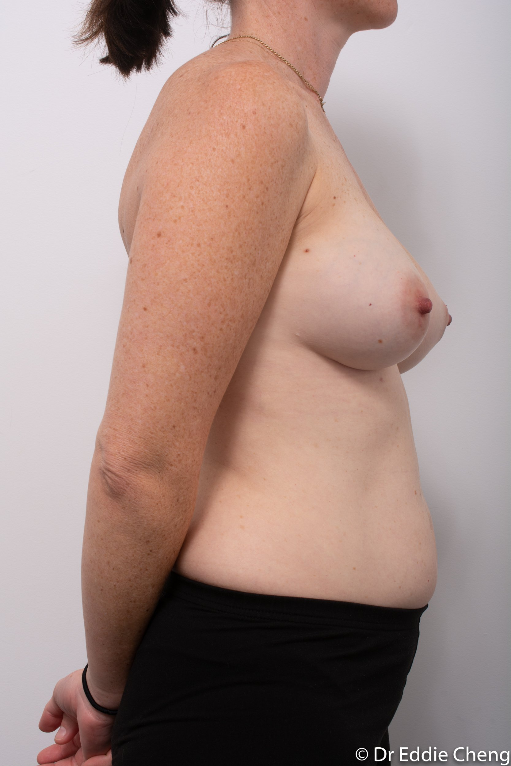 removal of implants or explant surgery dr eddie cheng brisbane-1