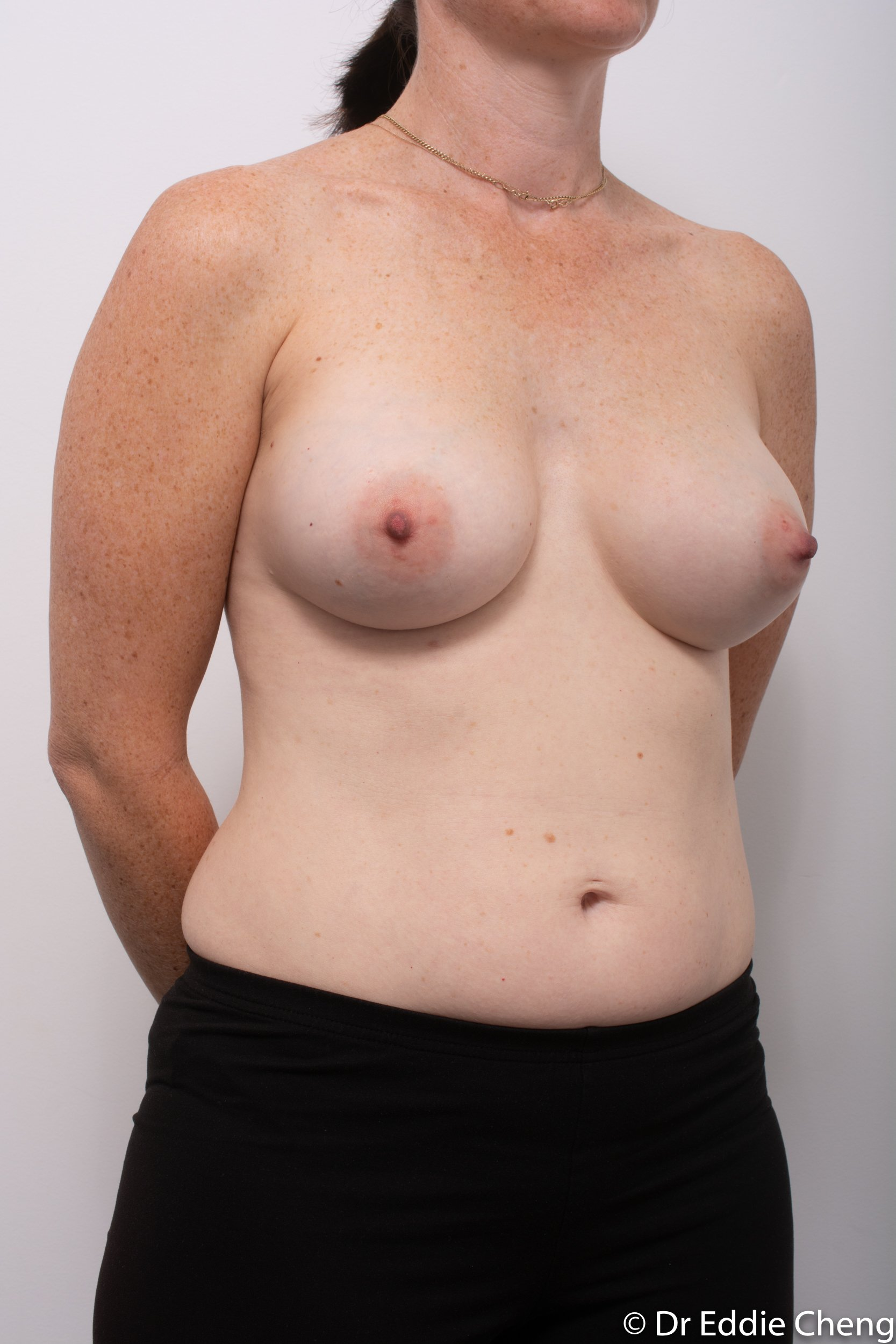 removal of implants or explant surgery dr eddie cheng brisbane-2