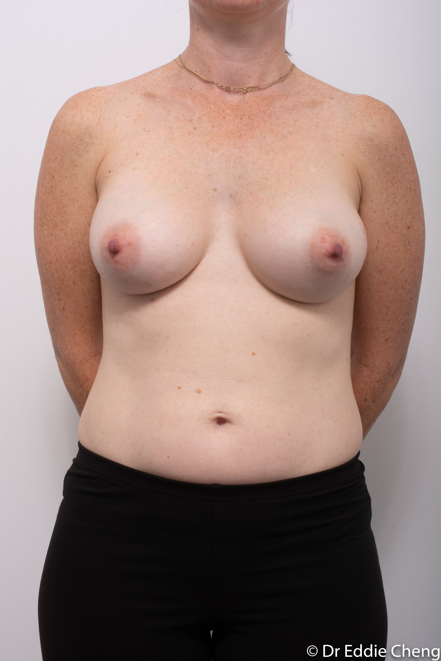 removal of implants or explant surgery dr eddie cheng brisbane-3