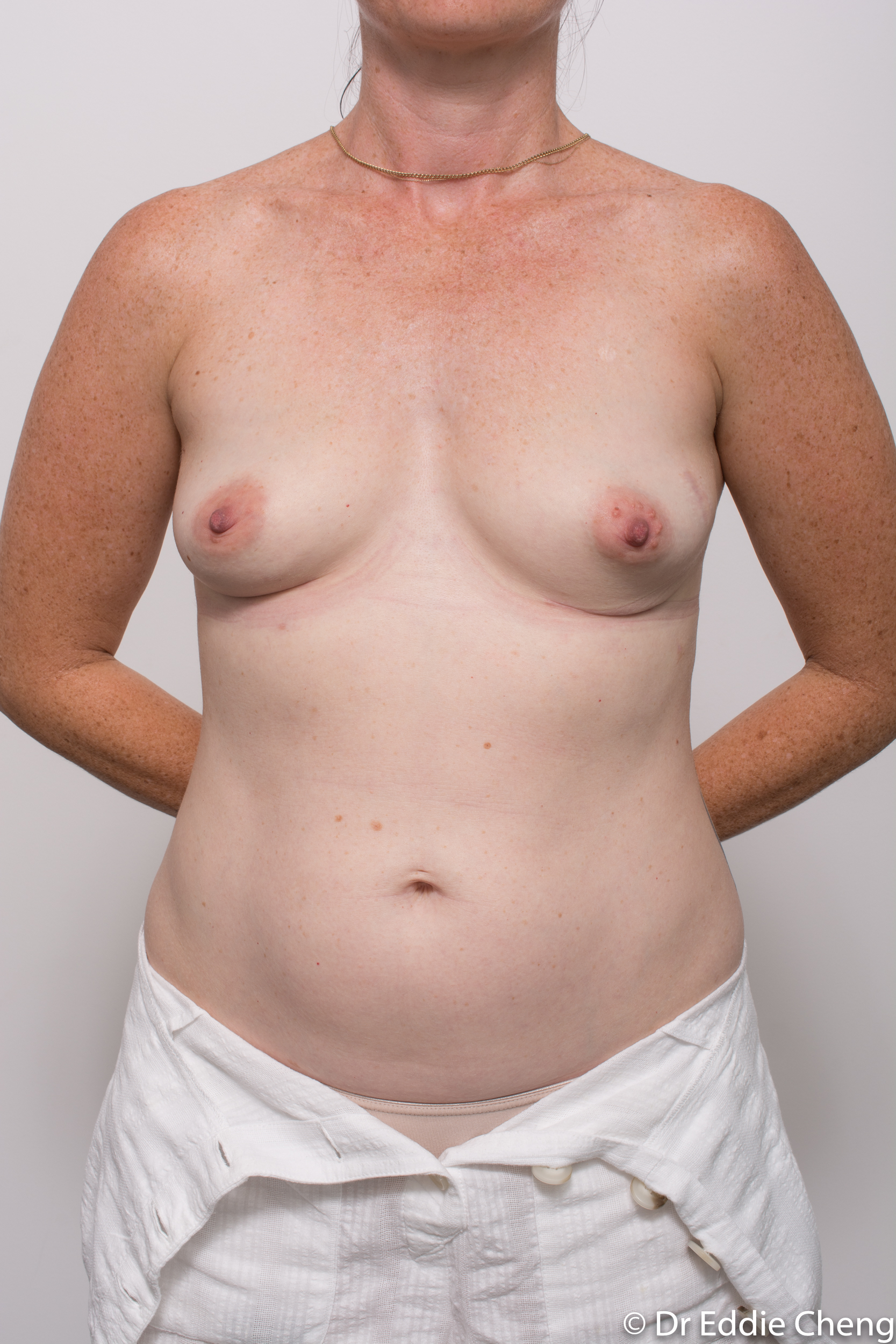 removal of implants or explant surgery dr eddie cheng brisbane-6
