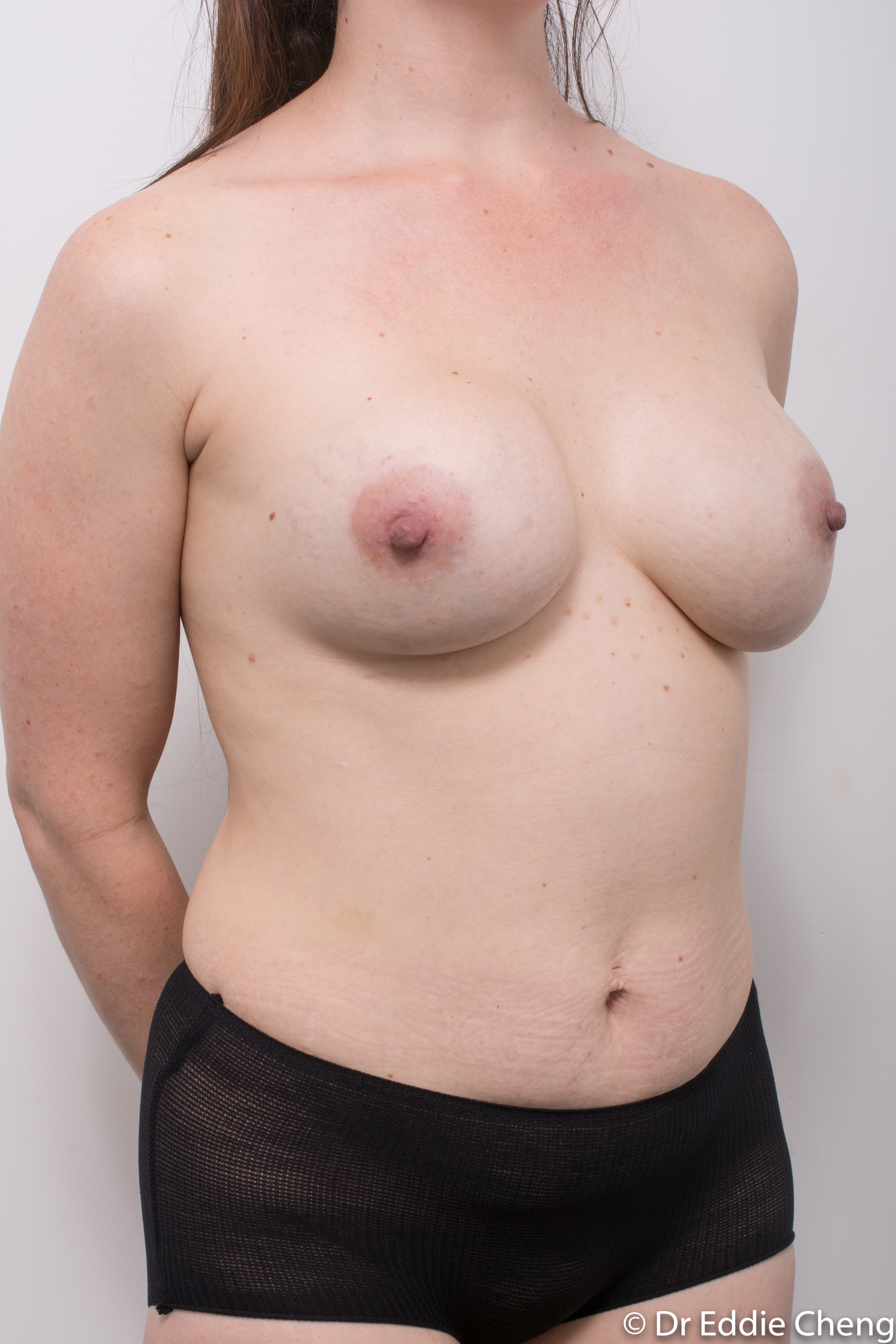 revision of breast implants dr eddie cheng brisbane-2