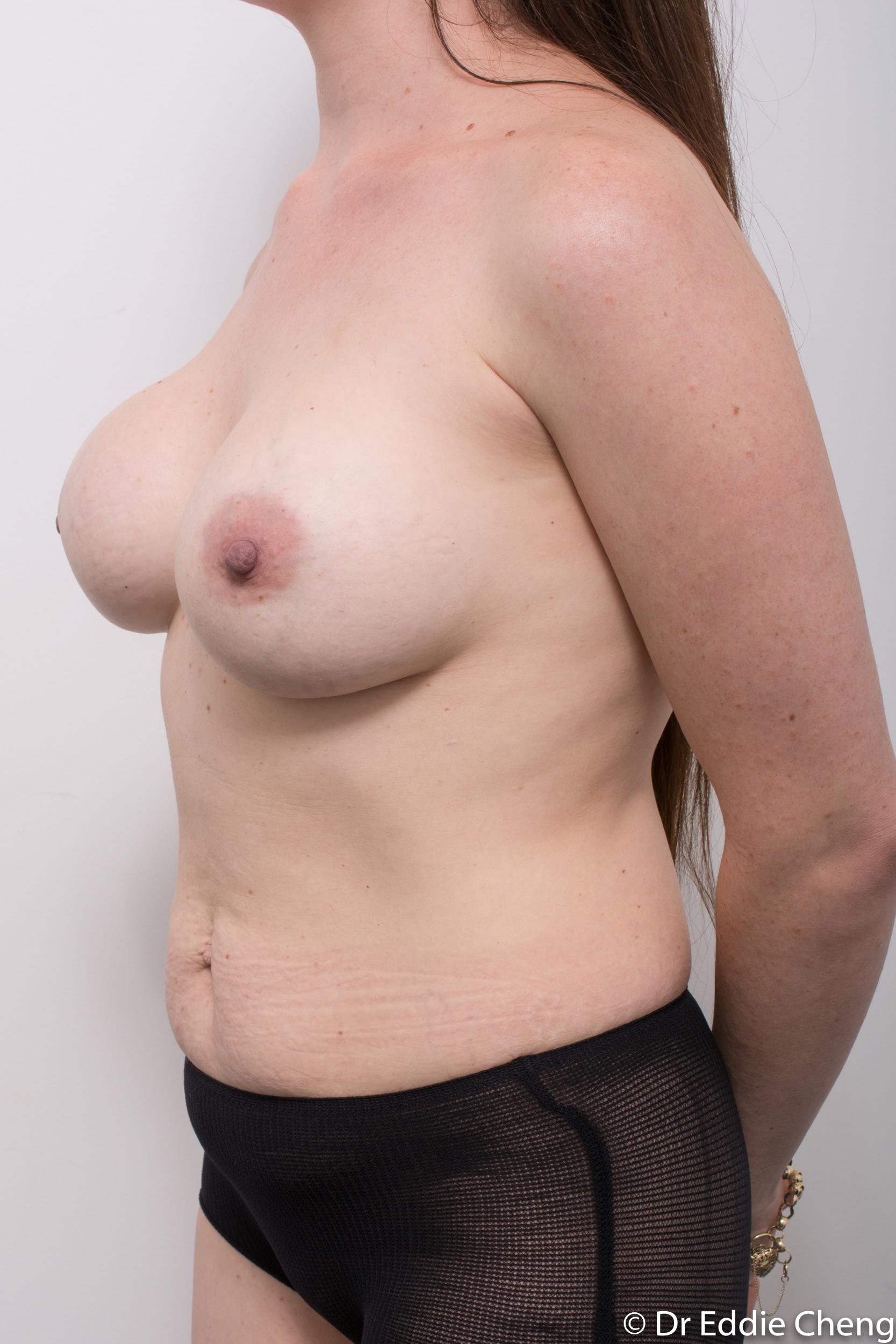 revision of breast implants dr eddie cheng brisbane-4