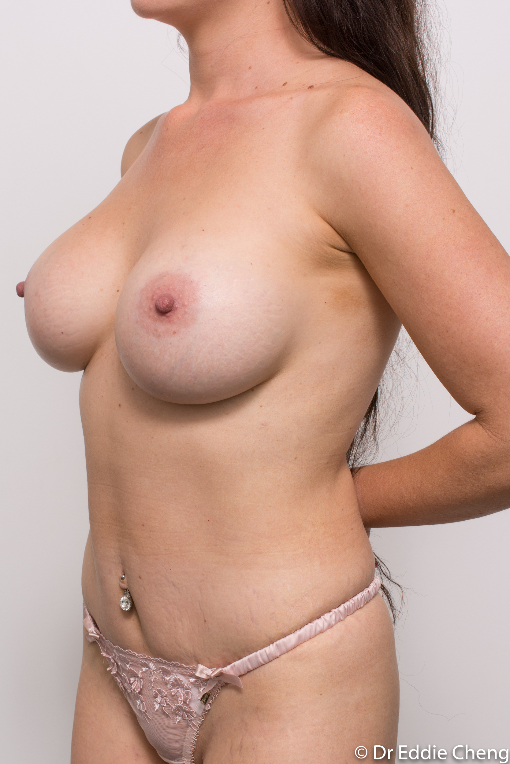 revision of breast implants dr eddie cheng brisbane-6