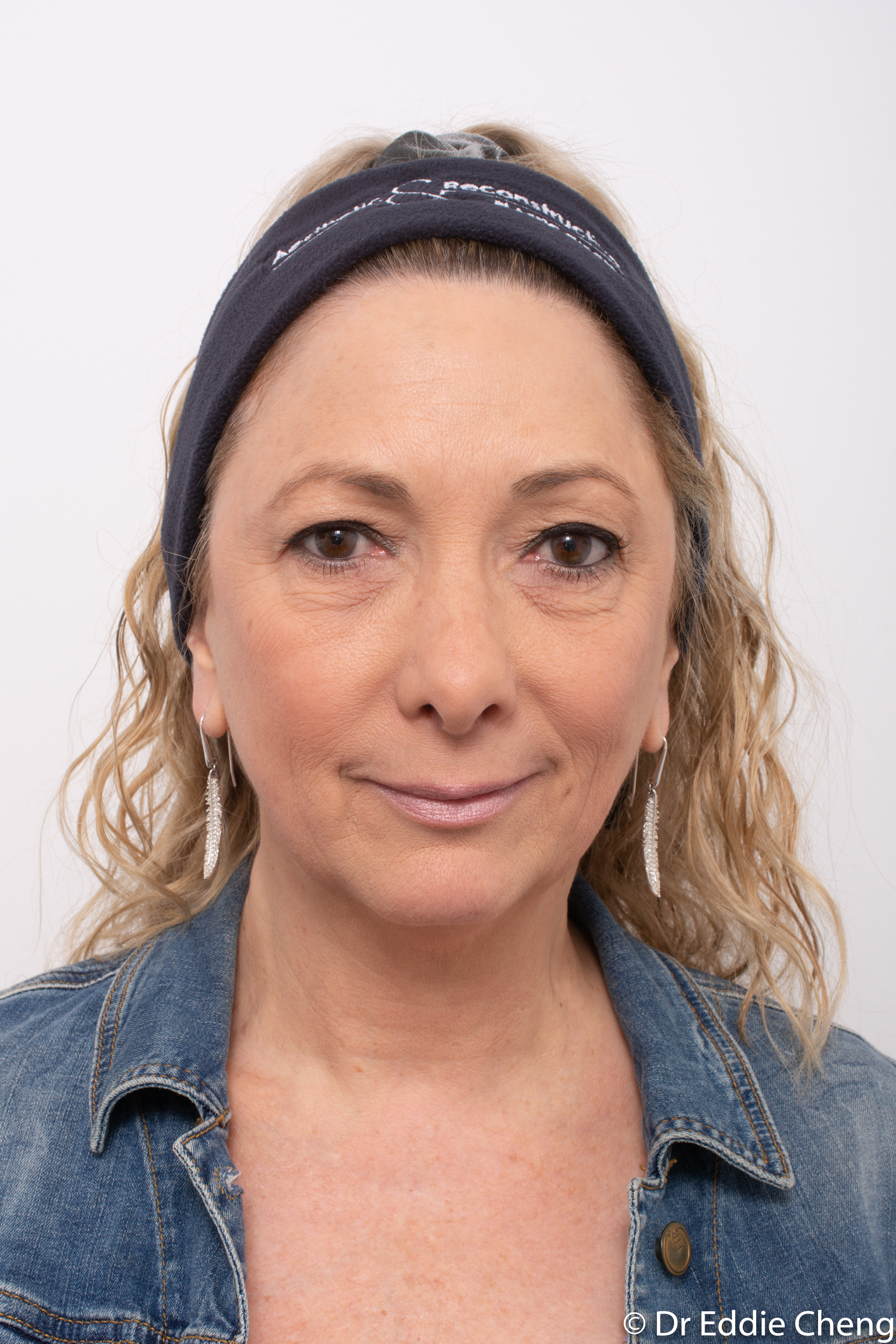 upper blepharoplasty browlift dr eddie cheng brisbane-1